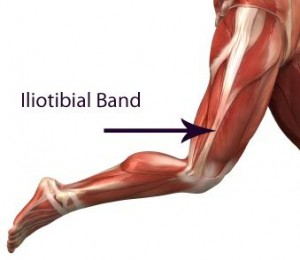 iliotibial-band1