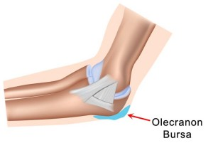 elbow-bursitis